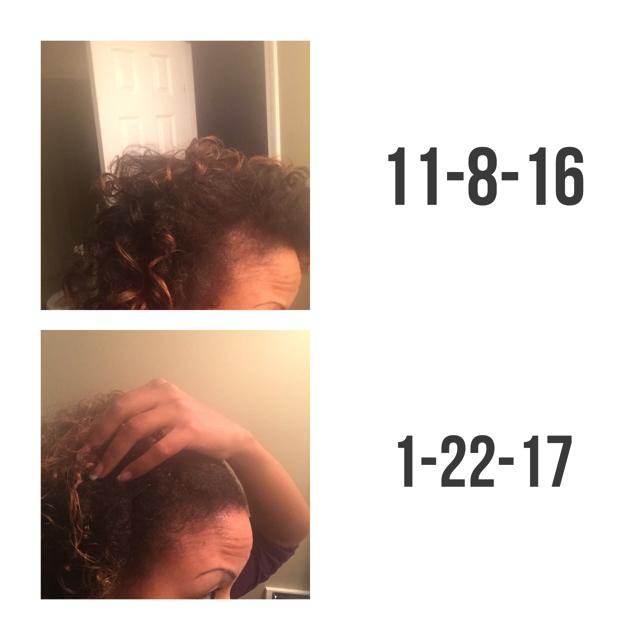 alopeciafree